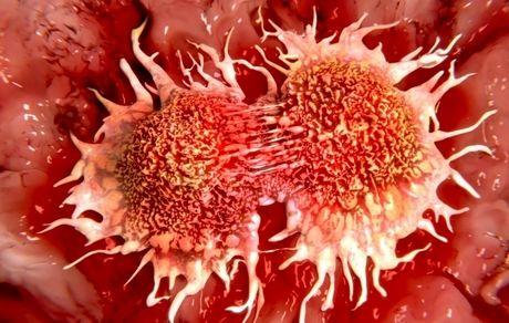 کدام سرطانها قبل از ابتلا قابل تشخیص هستند؟