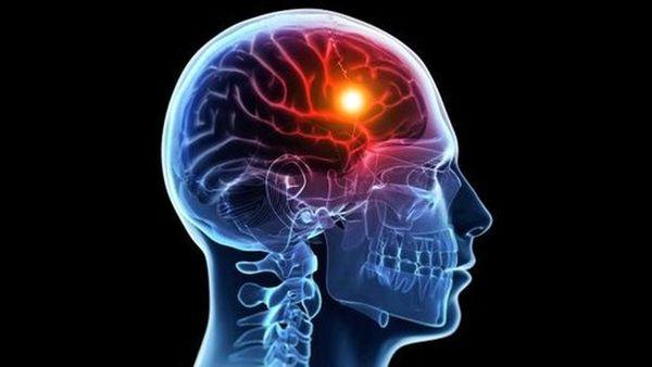 تومور بدخیم مغز چه علائمی دارد؟