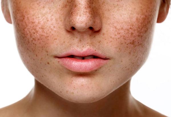 به آسانی لکهای پوستی خود را درمان کنید