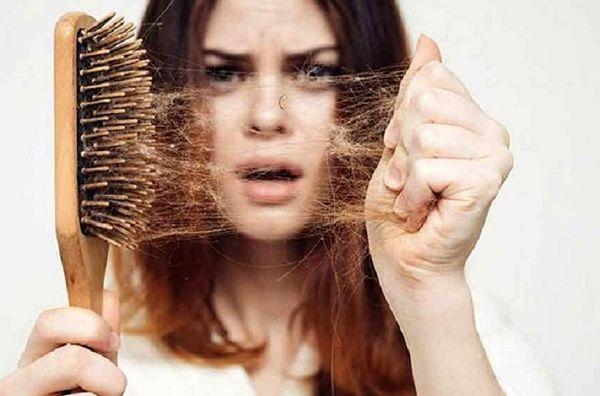 ویتامینهایی برای توقف ریزش مو
