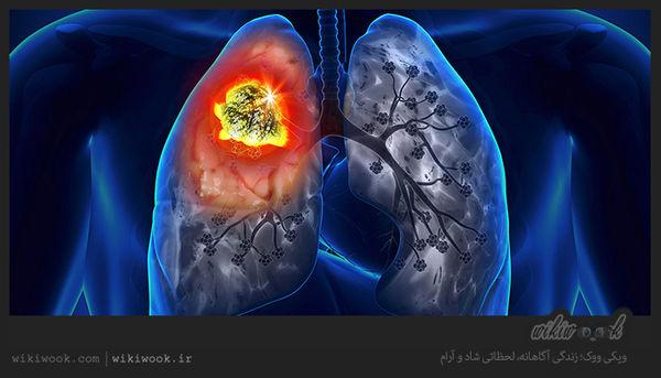 بهترین آنتی بیوتیک برای درمان عفونت ریه