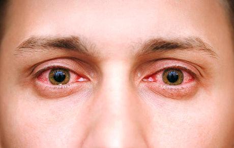 نور جوشکاری چه آسیبی به چشمها وارد میکند؟