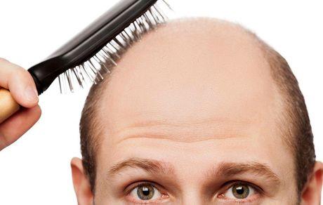 بدون نیاز به پزشک خودتان ریزش موهایتان را قطع کنید