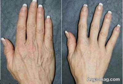 درمان خانگی وموثر چروک دست