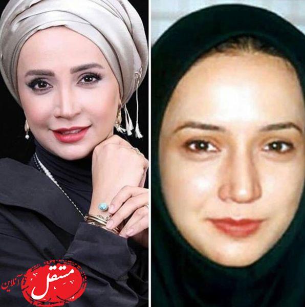 تغییر چهره شبنم قلی خانی بعد از عمل جراحی + عکس