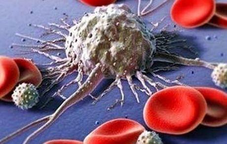 قابل درمانترین سرطانها کدامند؟
