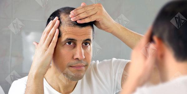 تغییرات موهای شما نشان دهنده بیماری شماست