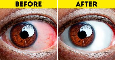 با این روشها خستگی چشمانتان را در کنید