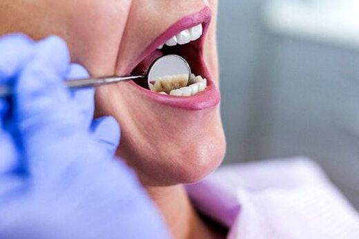 چگونه زخمهای دهان را درمان کنیم؟