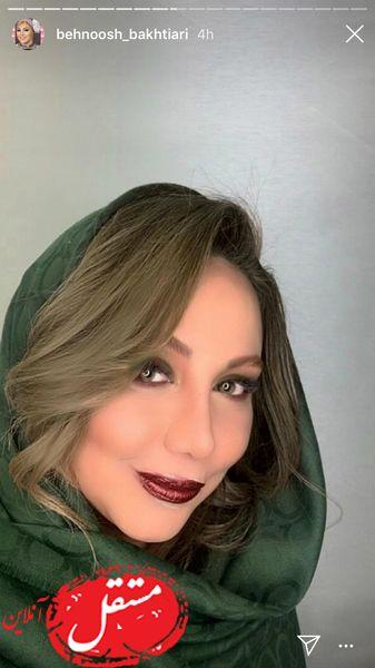 تغییر چهره محسوس بهنوش بختیاری + عکس