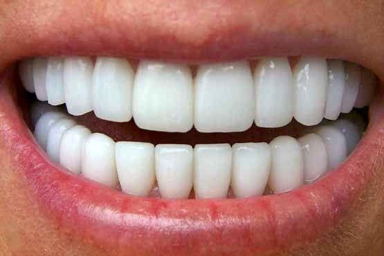 با مصرف این خوراکیها قبل از خواب دندانهایتان را محکم کنید