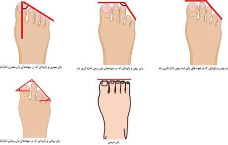 پای ایرانیان چه شکلی است؟ + عکس