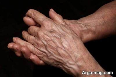 علت چروک و پیر شدن دست و روش های جلوگیری از آن