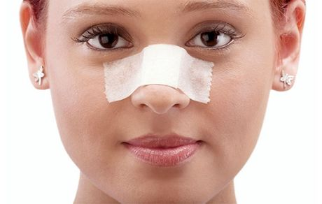 فقط سه گروه پزشکی مجاز به جراحی بینی هستند