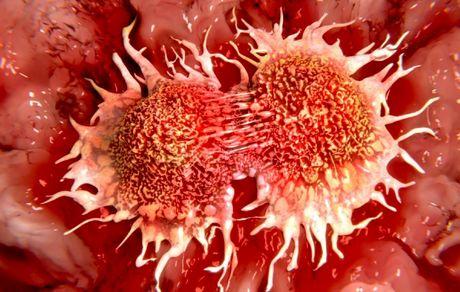 شایع ترین سرطان زنان و مردان را بشناسیم