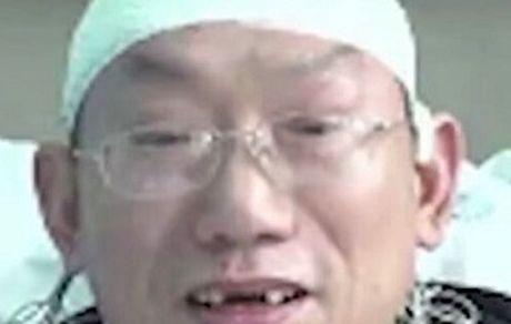 جراح چینی بر اثر خستگی زیاد بی دندان شد