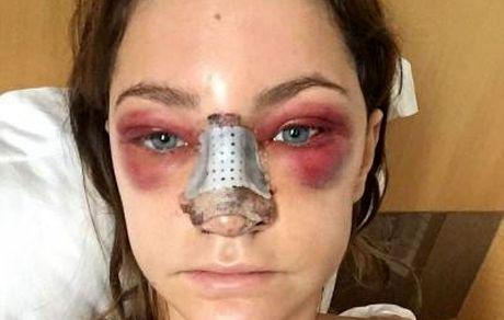 مراقبت های بعد از جراحی بینی !